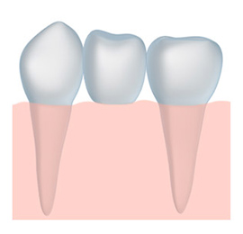 a Tooth Bridge can restore your smile to its former splendor, we serve the Stockton and Galt areas